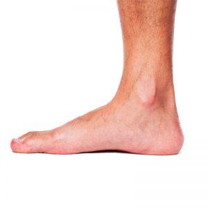piede-piatto
