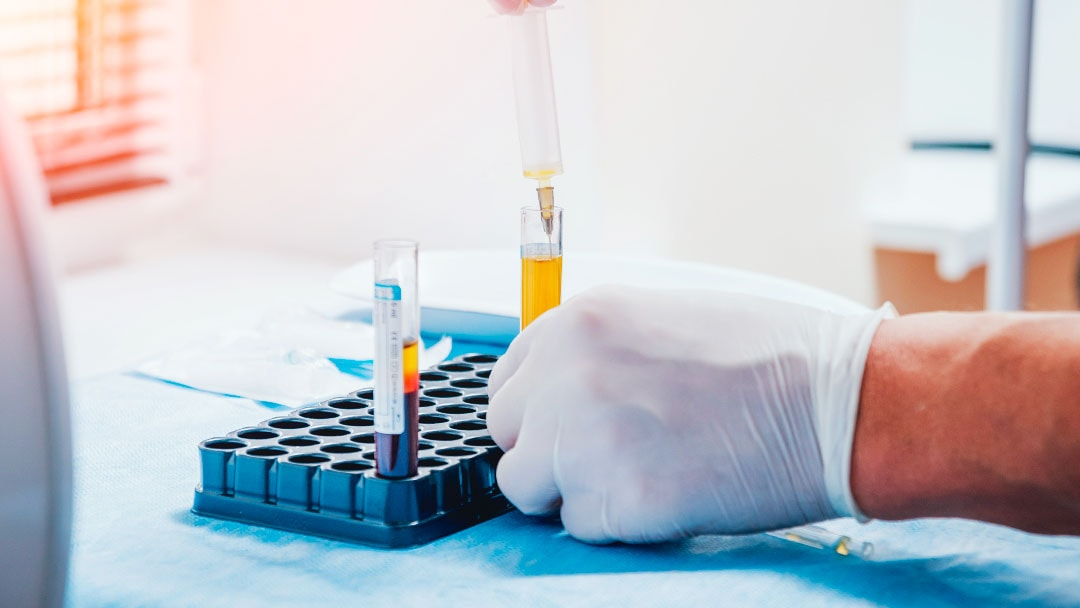 prp-laboratorio