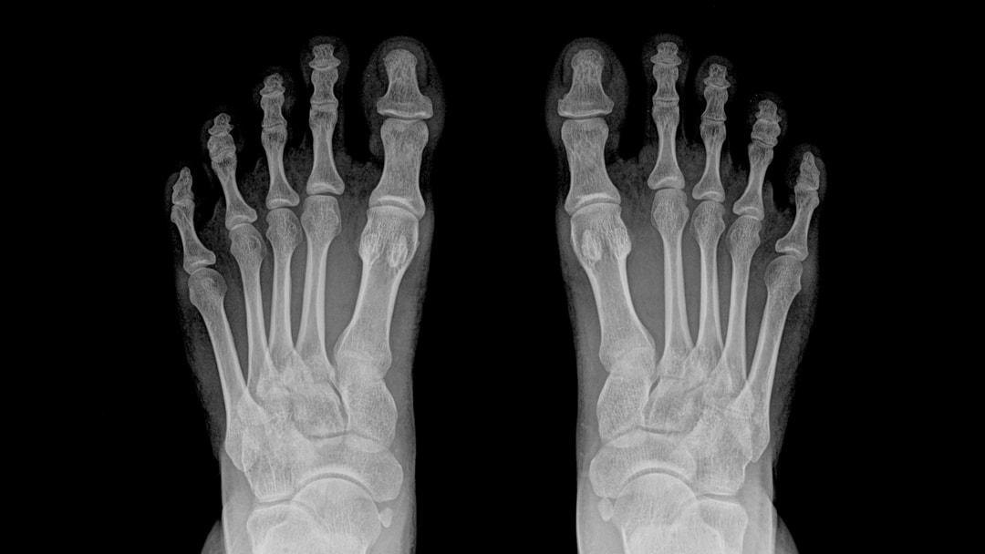 radiografia-dei-piedi-min