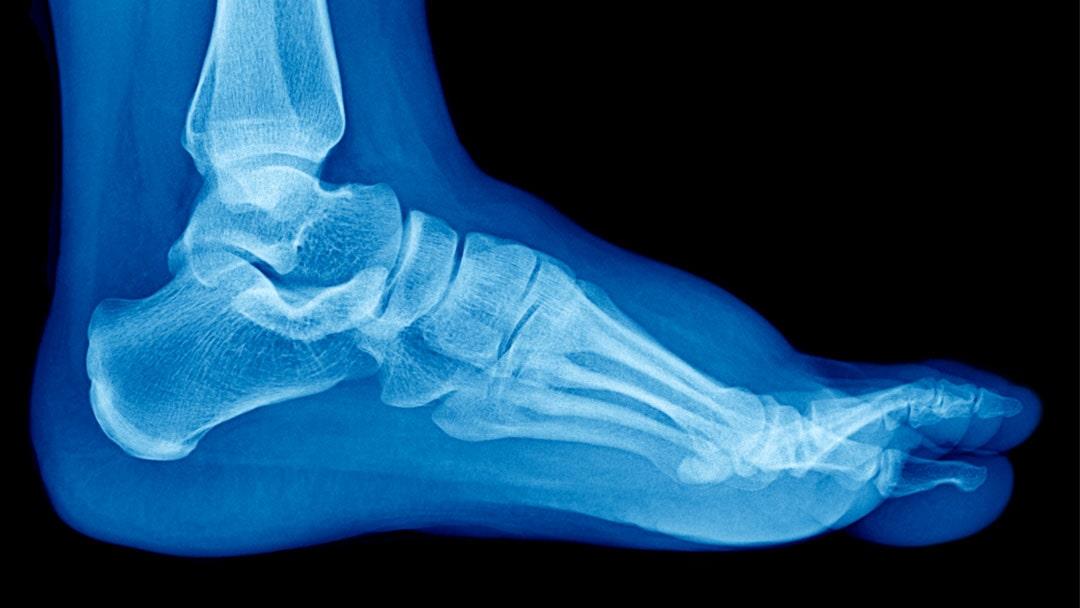 radiografia-del-piede
